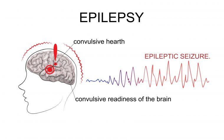 epileptic seizure prediction