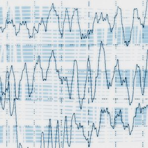 Brainwaves recorded during an electrencephalogram test for epilepsy.