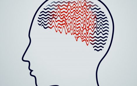 Early Surgery Gives Epilepsy Patients Better Chance to Be Seizure-free, Research Suggests