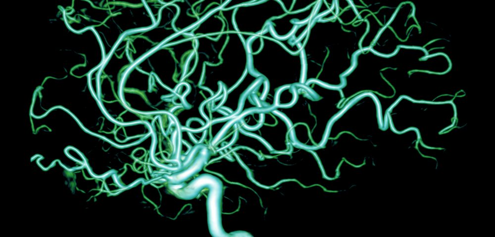 Blood Flow Abnormalities May Cause Neuronal Death and Cognitive Decline in Epilepsy