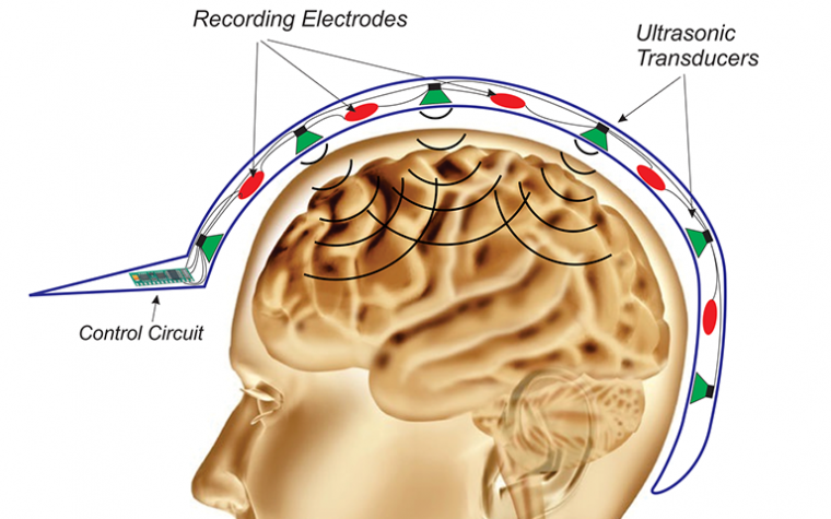 Researchers Working on Non-Invasive Method to Suppress Epileptic Seizures